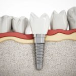 dents-manquantes-implant-dentaire-solution