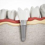dents-manquantes-implant-dentaire-solution