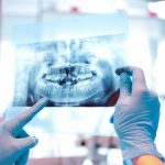Radiologie-Dentaire