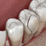 differentes-solutions-remplacer-dent-cassee
