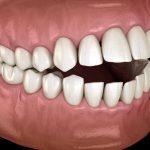 malocclusion-dentaire-classe-1
