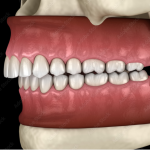 malocclusion-dentaire-classe-2