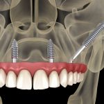 implant-zygomatique